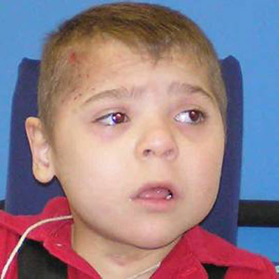 Disabled Child: Dad was tired of caring for him